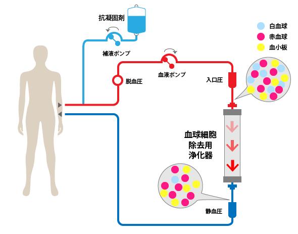 白血球除去(LCAP)の治療方法